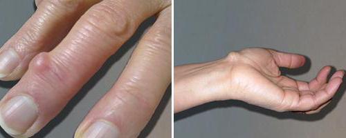 a csípőízületi gyulladás kezelésének szabványai)