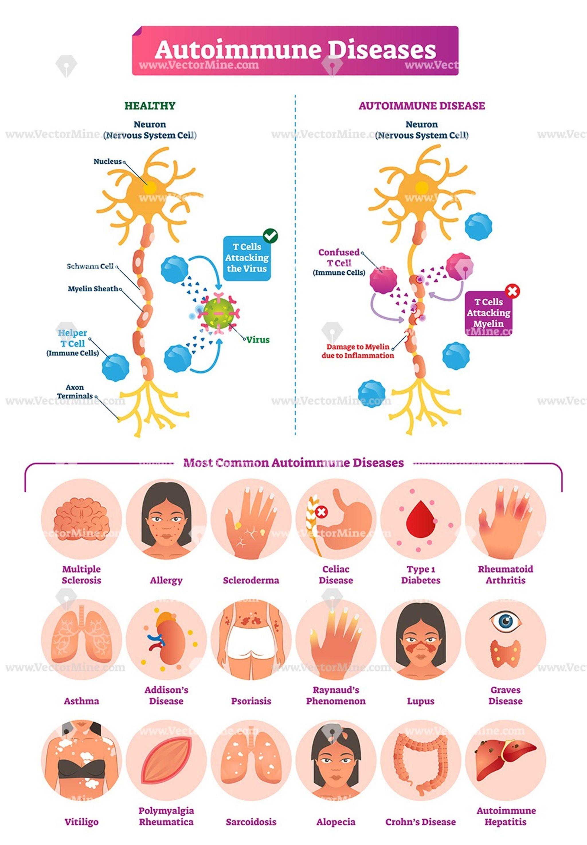 Hogyan alakul ki a lábfej artrózisa és hogyan kell kezelni?