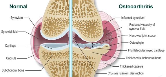 kis ízületek osteoarthrosis arthrosisja