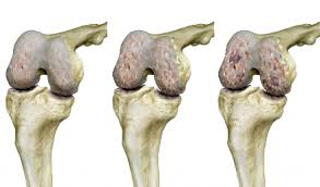 könyök csontritkulás kezelés időtartama ízületek fáj egy nehéz fej