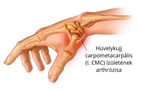 Fájdalmas hüvelykujj