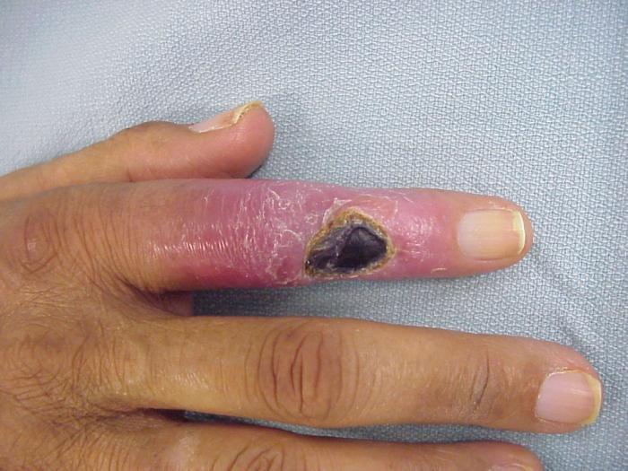 Tünetei és kezelése a kicsi ujj mozgásának a kezében