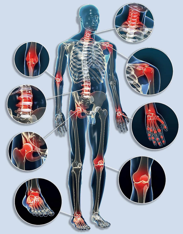 Artikuláris szindróma - Bőrgyulladás