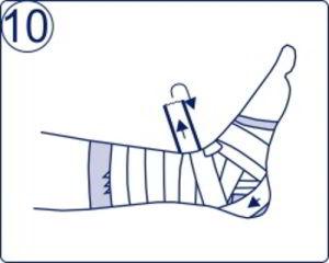 a bokakötések rugalmas kötésének károsodása)