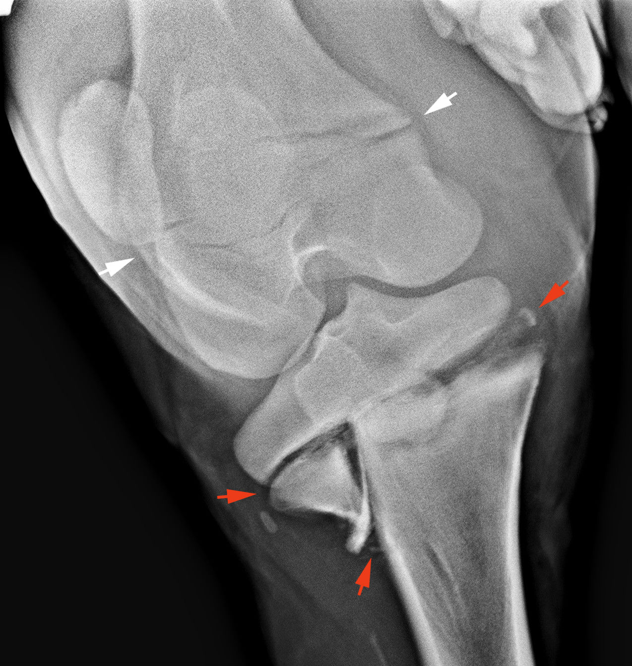 csontritkulás gyógyszere a izületi problémák megelőzése