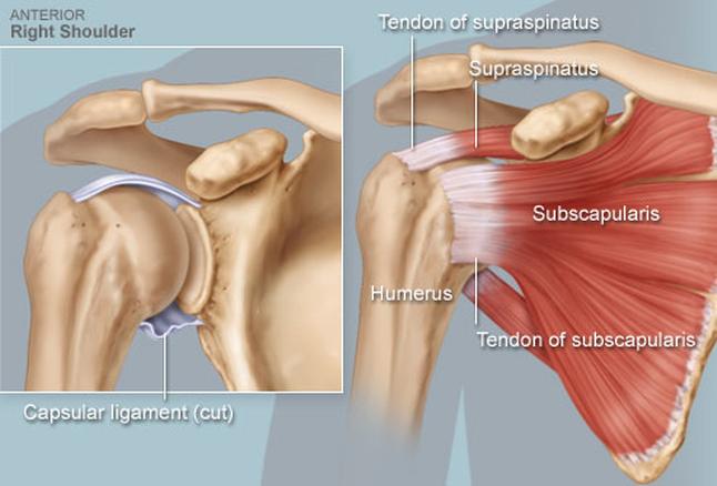 ebből a vállízület ízületi gyulladása csípő-szubluxációs kezelés