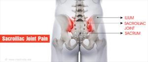 csípő sacroileitis kezelés mit jelent az ízületek ízületi gyulladása