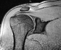a könyökízület deformáló artrózisa 3 fok térdfájdalomkezelő kompresszor
