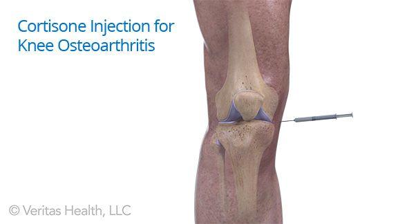 injekciók ízületi fájdalomra a