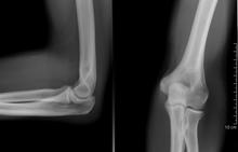 emberi könyök sérülés ízületi gyulladás tünetei az ujjakon