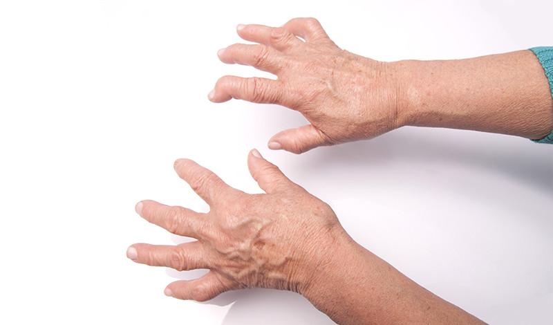 enyhíti az ízületi gyulladást rheumatoid arthritisben)