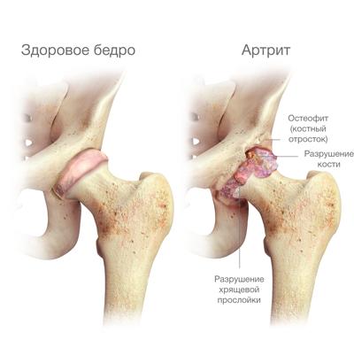 a fájdalom oka a csípőízület izmainak
