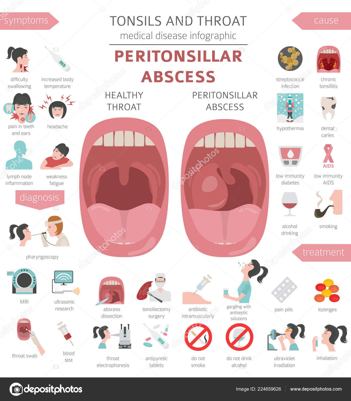a lábízület osteoarthrosis kezelése)