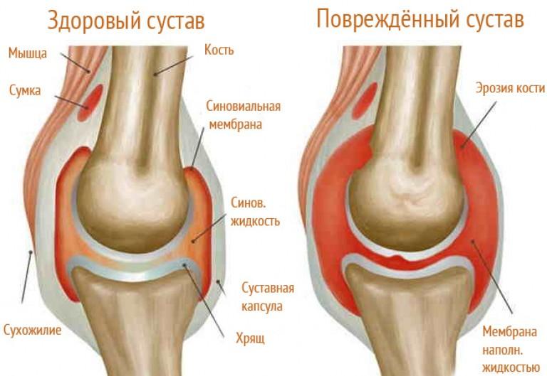 akut fájdalom a boka ízületében)