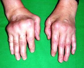 ízületek fájdalma ujjak térd a lábujjak ízületeinek gyulladása kenőcs