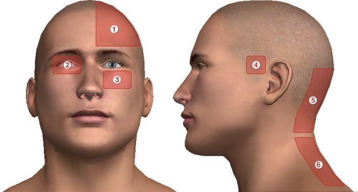 A fájdalom helyéből kideríthető a fejfájás oka