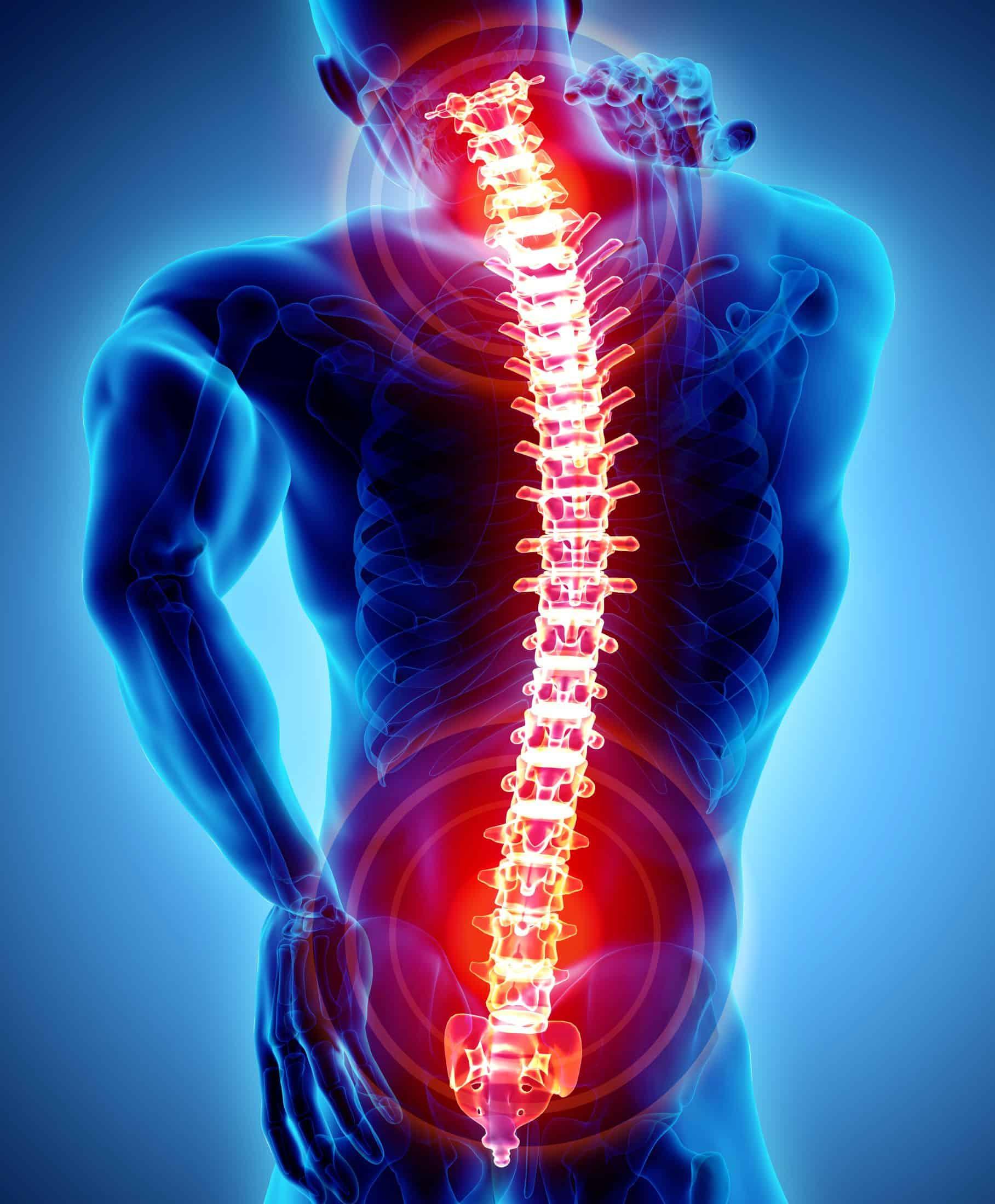 érzéstelenítés után ízületi fájdalom poszttraumatikus bokaízület artrózisa 1 fokos kezelés