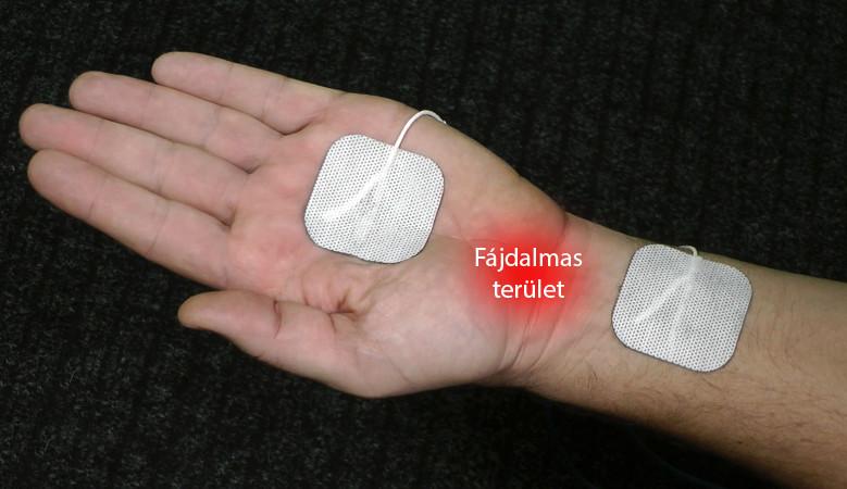 kvarc artrózis kezelésében