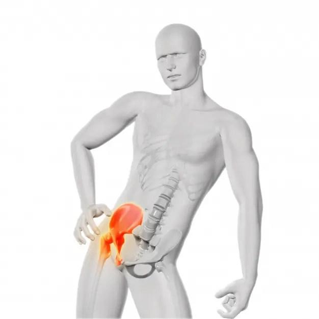 fájdalom a bal csípőízületben, ha ferde)