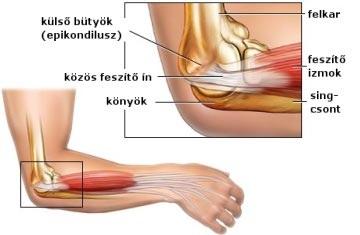 Mi okozhatja a könyök fájdalmát? - fájdalomportáschweidelszallo.hu