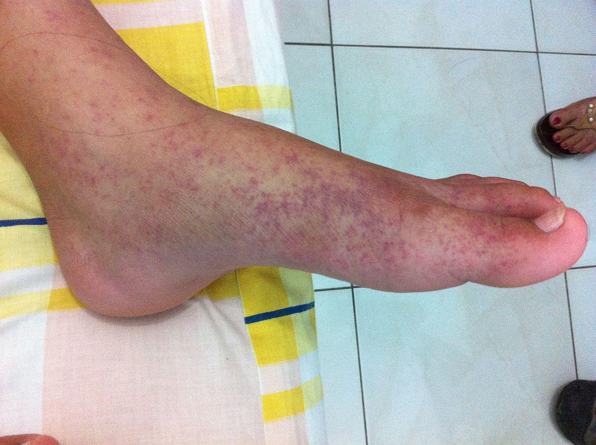 fájdalom a lábak ízületeiben 25