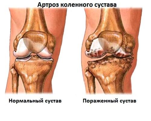 fájdalom a térd hemarthrosisával csípőízületek fájnak edzés után