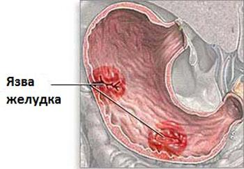 fájhatnak az ízületek a gerinctől)