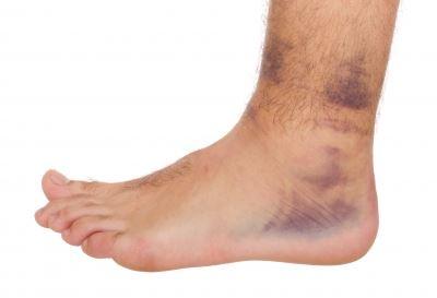 foci boka kezelés sérülés után