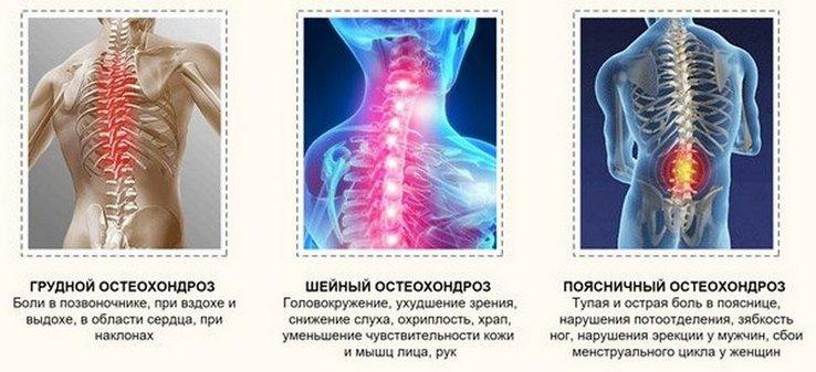 gerinc osteochondrozis kenőcs ár