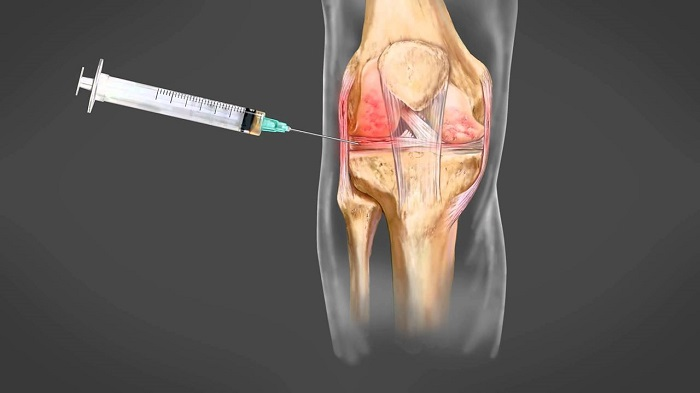 Térd deformáló artrózisa és a fermatron, A térdízület csontritkulásához szükséges injekciók típusai