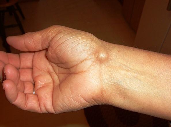 gyulladt csuklóízület kezelés