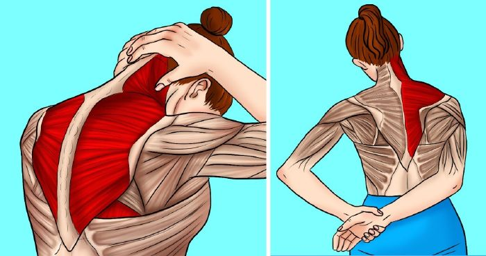 hogyan lehet enyhíteni a váll fájdalmat