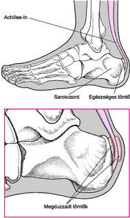 hogyan lehet érzésteleníteni a boka fájdalmát fullflex ízületi gyógyszer