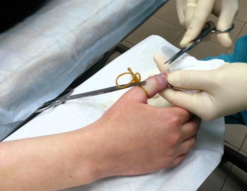 kenőcs ujjgyulladás kezelése