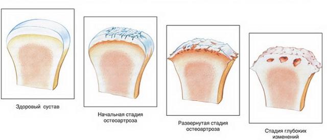 fájdalom és duzzanat a boka ízületében