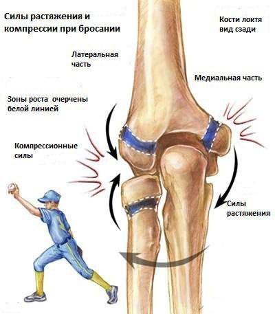 Golfkönyök (Epicondylitis medialis Humeri) | Dr. Gergely Zsolt