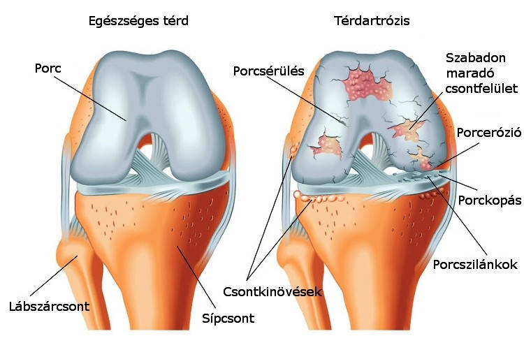 Meniszkusz könnyek kezelése műtét nélkül, A térdízület meniszkusz-könnyének kezelése