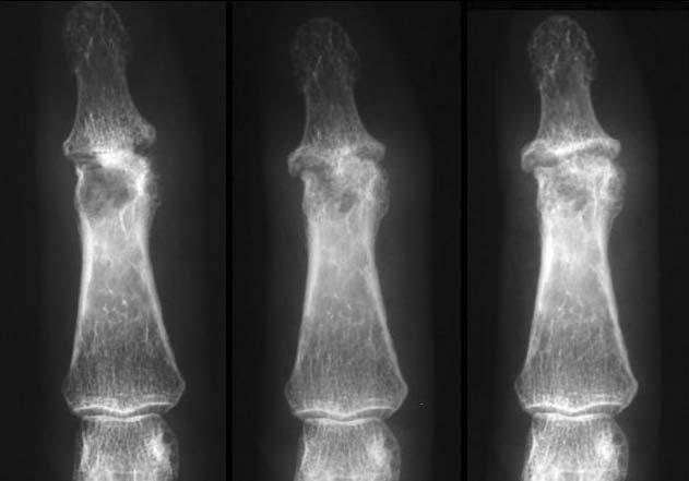 osteoarthritis kialakulása)