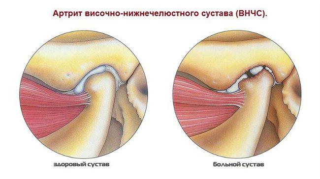 rágásos fájdalom az arcízületben poszt-traumás ízületi ízületi tünetek