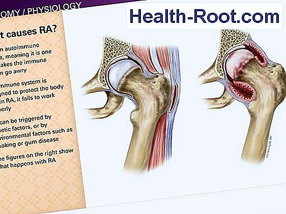 rheumatoid arthritis boka tünetei)