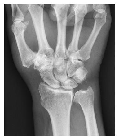 scaphoid scaphoid artrosis)