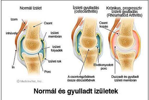 térdízület duzzanata ízületi gyulladással)