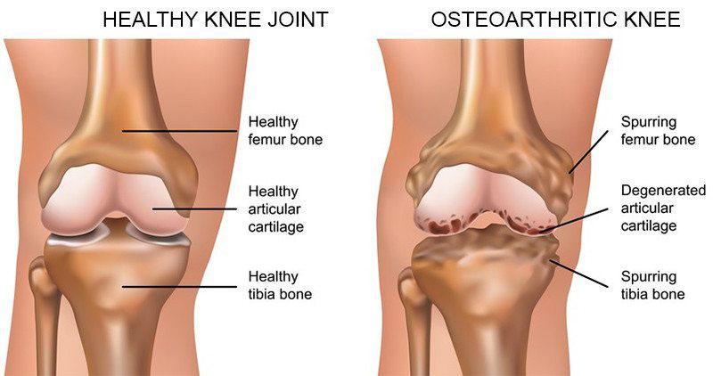 térdízületi kezelés artrózisának súlyosbodása