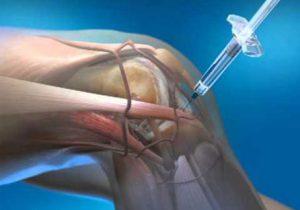 térdízületi fájdalom artrózis kezelése