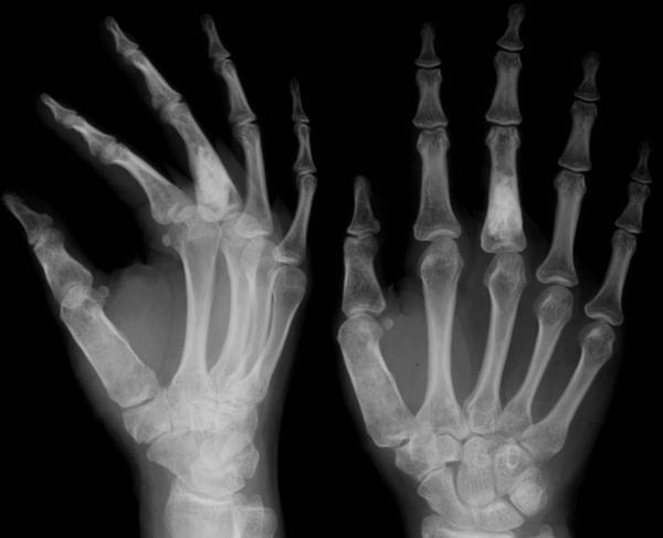 Ujjízület diszlokáció kezelése. Az ujjak diszlokációjának tünetei