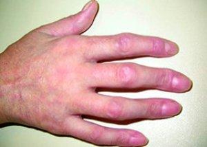 vegyes kötőszöveti betegség tünetei