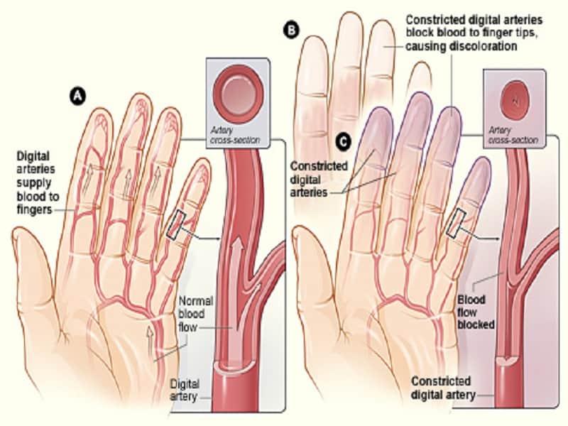 ízületek fáj a kezét