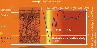 ízületek infravörös sugarakkal történő kezelése)