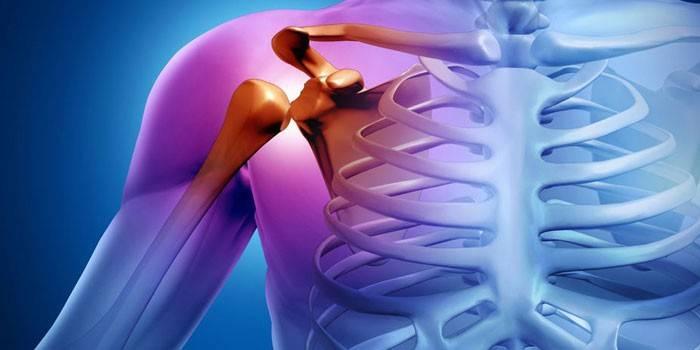 ízületek kezelése urál ízületi fájdalom comb tabletták