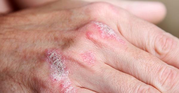 ízületi betegség vörös foltokkal)